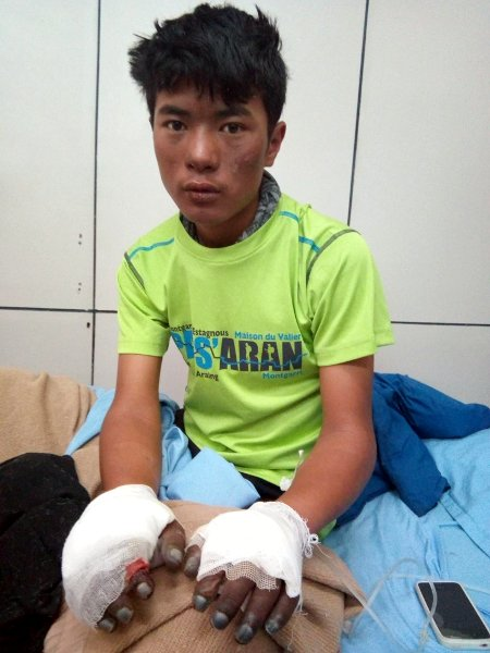 Sange shows the bandages on his frostbitten hands after his escape from Everest in May (Photo: Sange Sherpa)